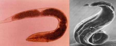 Pinworms Parasites