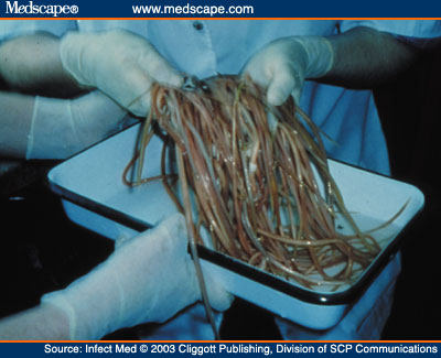 Roundworms Parasites